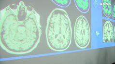 Bullismo cambia cervello, danni fisici a chi lo subisce