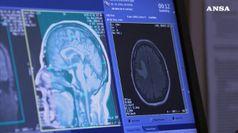Un italiano su 4 ha malattia cronica, il 20% piu' di una
