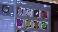 Riattivate cellule cervello di maiale ore dopo la morte