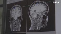 Scoperta nuova forma di demenza, piu' comune di Alzheimer