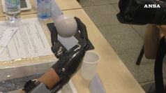Perde mano per scoppio petardo, ora ne usa una bionica
