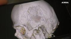 Cestista operato al cranio tornera' a giocare