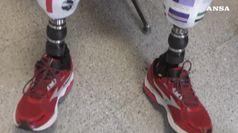 Tornano a sentire le gambe grazie alla protesi bionica