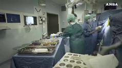 A Bologna il primo trapianto al mondo di vertebre umane