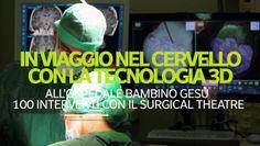 Al Bambino Gesu' 100 interventi cranici con tecnologia 3D